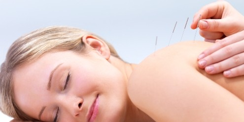 acupuncture for allergy